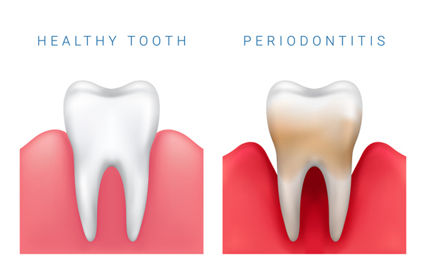 Diagram of healthy tooth compared to periodontitis diseased tooth